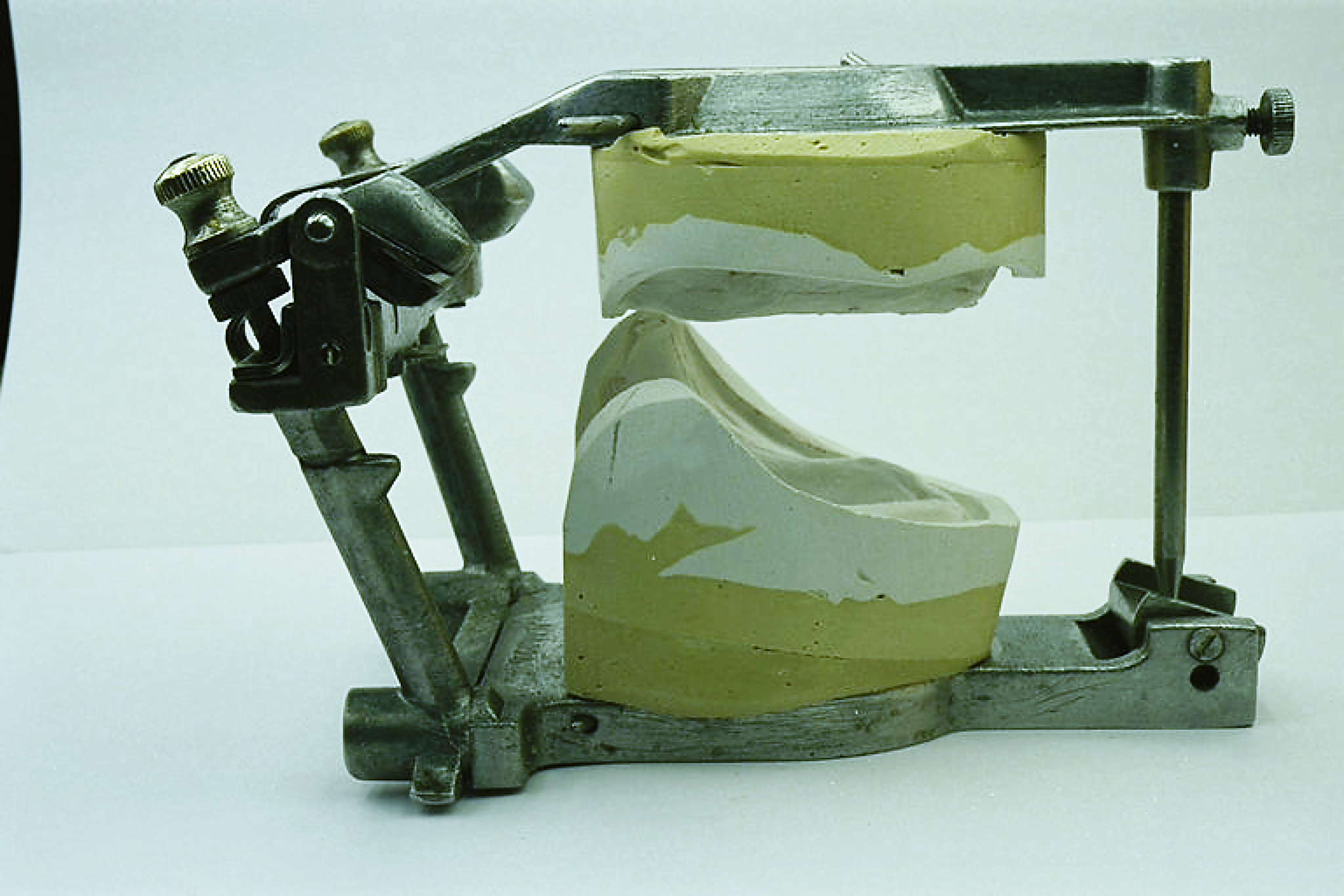 Prothèse Complète Bi-Maxillaire