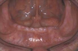 anatomie mandibulaire